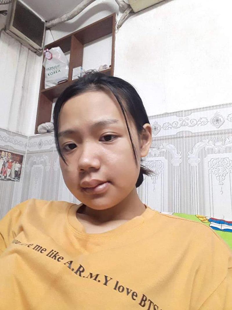 Là nạn nhân của  body-shaming nhiều năm trời, cô gái 'lột xác' sau khi phẫu thuật hàm 4
