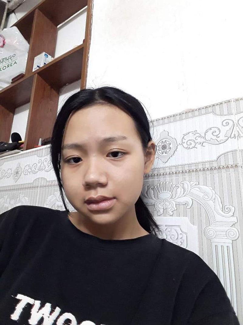 Là nạn nhân của  body-shaming nhiều năm trời, cô gái 'lột xác' sau khi phẫu thuật hàm 5
