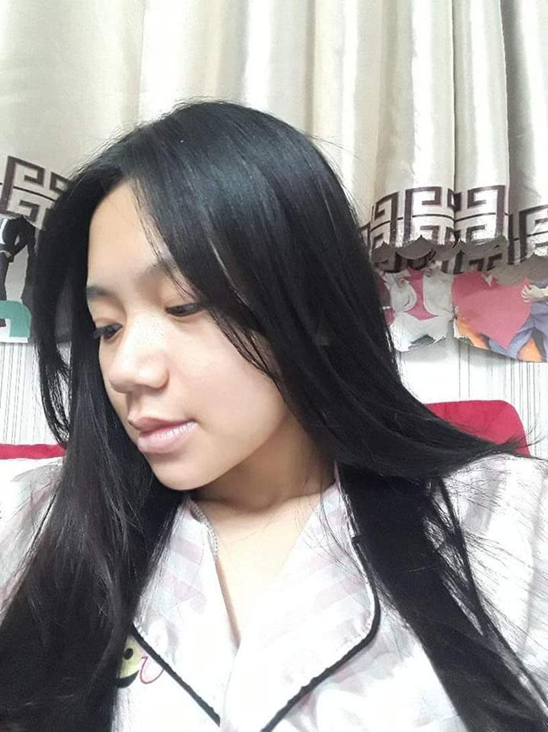 Cận cảnh những thay đổi từng ngày trên gương mặt của Linh