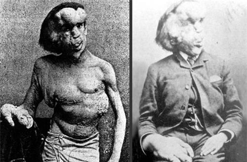 Cuộc đời đau khổ và ngắn ngủi của 'Người voi': Sinh ra mang vẻ ngoài khác biệt với những khối u lớn bí ẩn không lời giải đến tận ngày nay 1