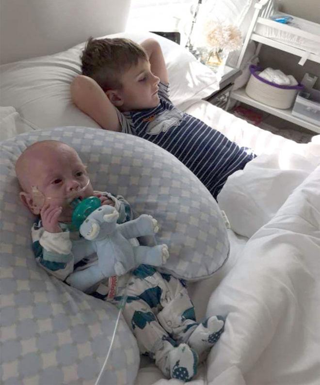 Bé sinh non chỉ nhỏ như bàn tay từng bị 15 bệnh viện từ chối tiếp nhận vì không ai tin có thể sống sót 2 năm trước bây giờ ra sao? 6