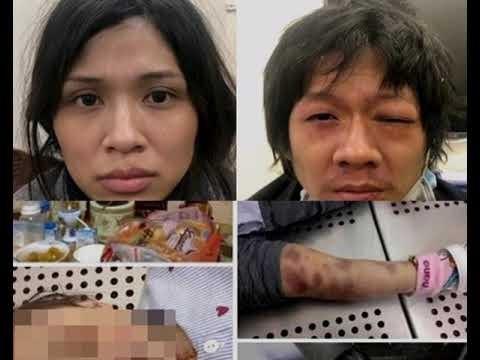 Hình ảnh hai đối tượng (ảnh trên) và những vết thương chi chít trên thi thể bé gái (ảnh dưới)