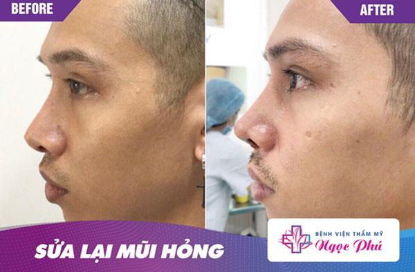 Trường hợp đầu mũi da mỏng, lộ rõ sống được khắc phục hiệu quả