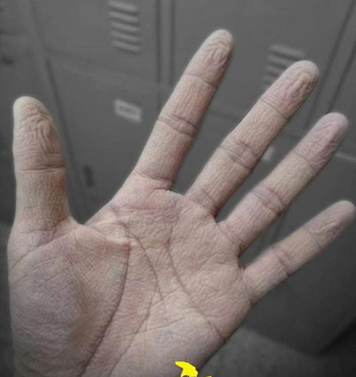 Bàn tay sau nhiều giờ đeo gang tay bảo hộ.