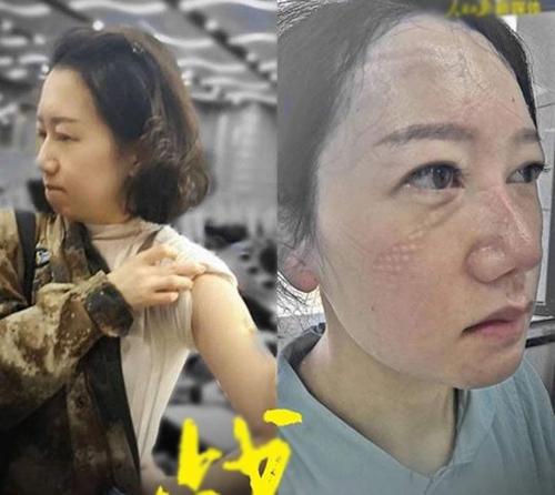 Cộng đồng mạng Trung Quốc lan truyền hình ảnh nữ y tá tại Vũ Hán cùng câu chuyện 'rớt nước mắt' đêm giao thừa 1