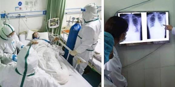Bác gái của BN17 chuyển biến nặng, suy hô hấp phải thở bằng máy và lọc máu. Ảnh minh họa