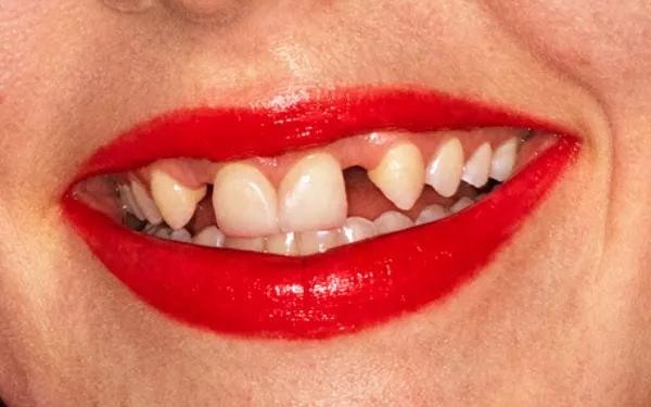 Dani Miller từng làm mẫu quảng cáo cho son môi của Gucci năm 2019.