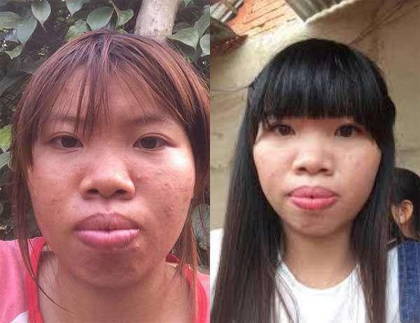 Trước khi phẫu thuật, 'Phượng Thị Nở' có khuôn mặt kém xinh và từng thất bại trong hôn nhân