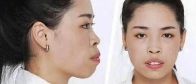 Vẻ ngoài xinh đẹp của cô gái 'lột xác' nhờ phẫu thuật thẩm mỹ, trở thành nữ chính tập đầu 'Người ấy là ai?'mùa 3 1
