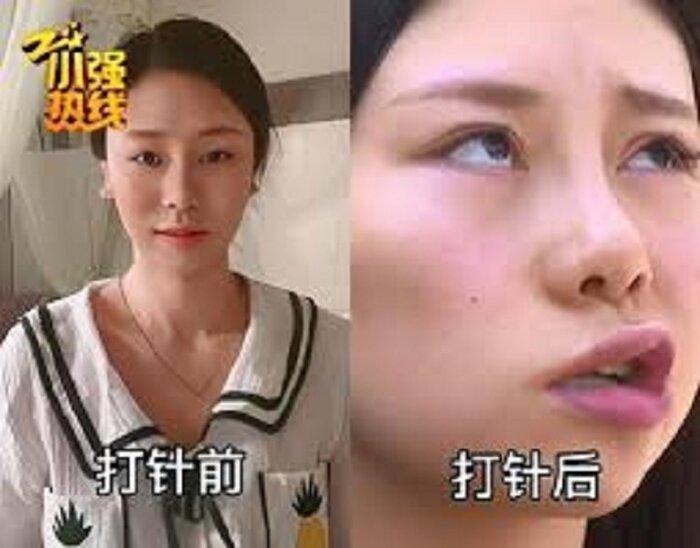 Chị Triệu trước vào sau khi bị liệt mặt.