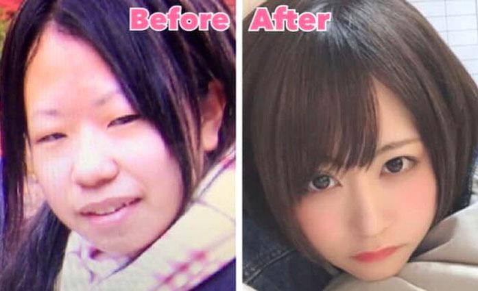 """Từ khi công khai quá trình phẫu thuật thẩm mỹ hồi tháng 3, cô nàng Mikishi ở Nhật Bản đã trở thành biểu tượng của những ca """"đổi mặt"""" thành công rực rỡ."""