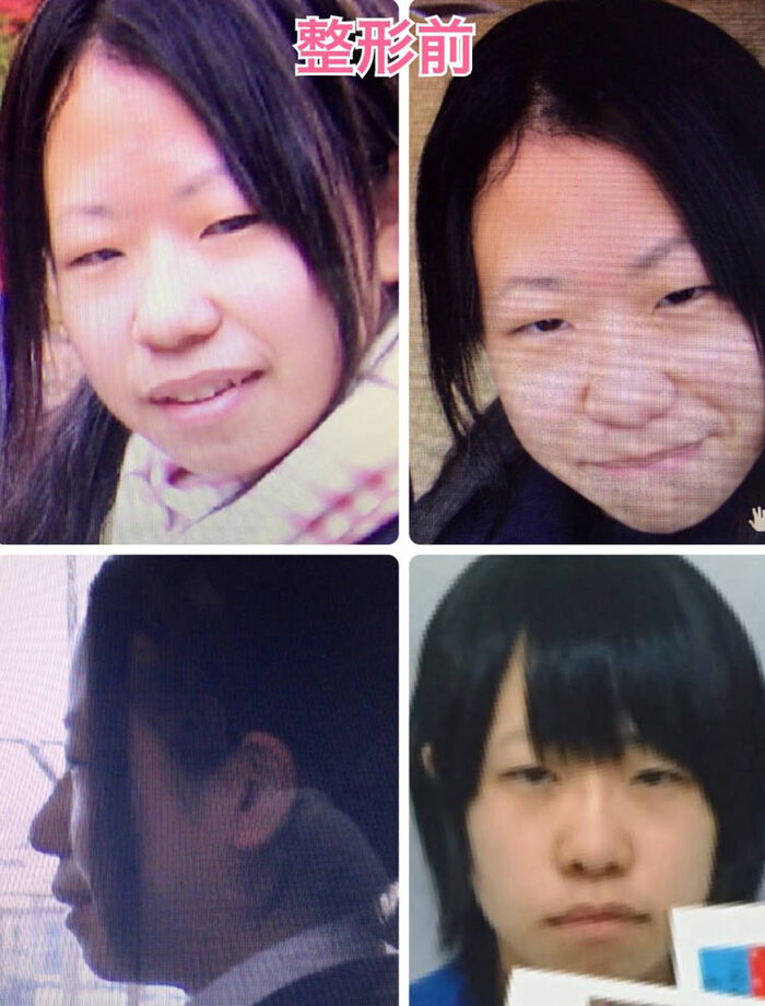 Mikishi trước khi phẫu thuật thẩm mỹ.