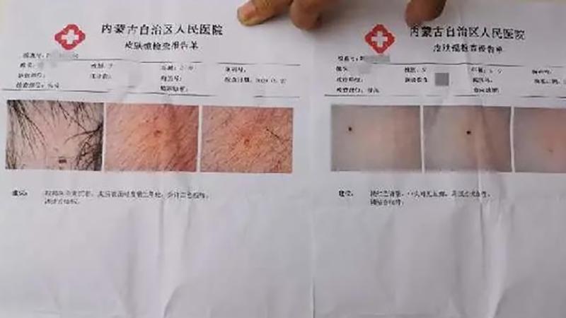 Các vết kim đâm được tìm thấy trên người học sinh sau khi kiểm tra y tế. (Ảnh. Xinhua).