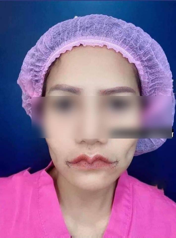 Hình ảnh trước và sau khi thẩm mỹ đôi môi của cô gái.