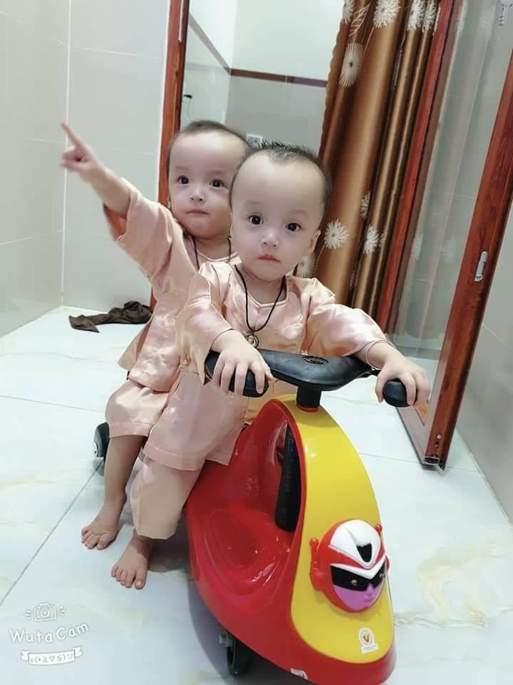 Cặp song sinh tách rời đua xe mệt nghỉ với các y bác sĩ bệnh viện Nhi đồng Thành phố. Ảnh bệnh việnNhi đồng Thành phố.