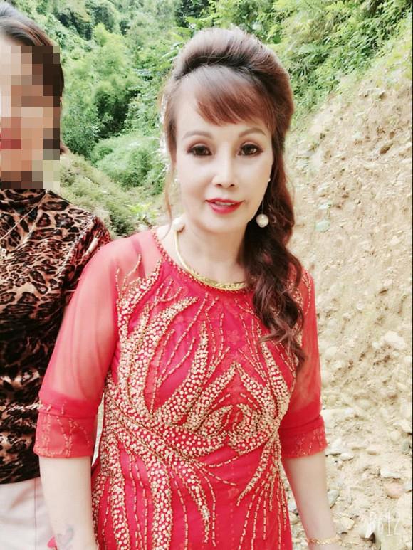 Hình ảnh cô dâu Cao Bằng bị méo miệng do phẫu thuật thẩm mỹ.