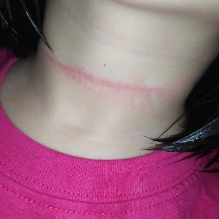 Cô bé đã cố treo cổ của mình bằng dây cuốn rèm cửa đến đỏ hằn cả vòng dây quanh cổ.