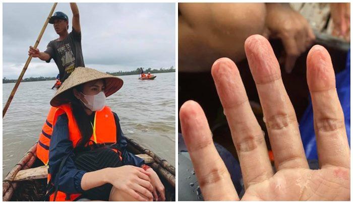 Bàn tay của cô nhăn nheo vì phải tiếp xúc với nước quá nhiều.