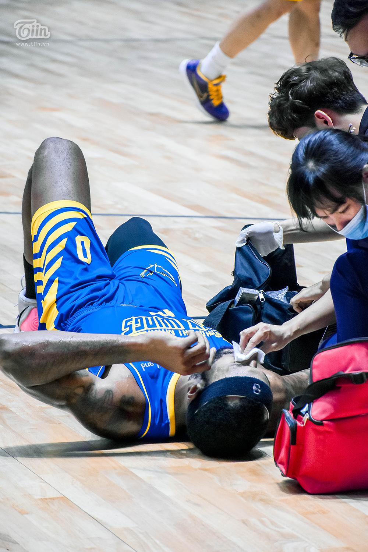 Tình huống va chạm khiến ngoại binh Hochiminh City Wings ôm mặt đau đớn 5