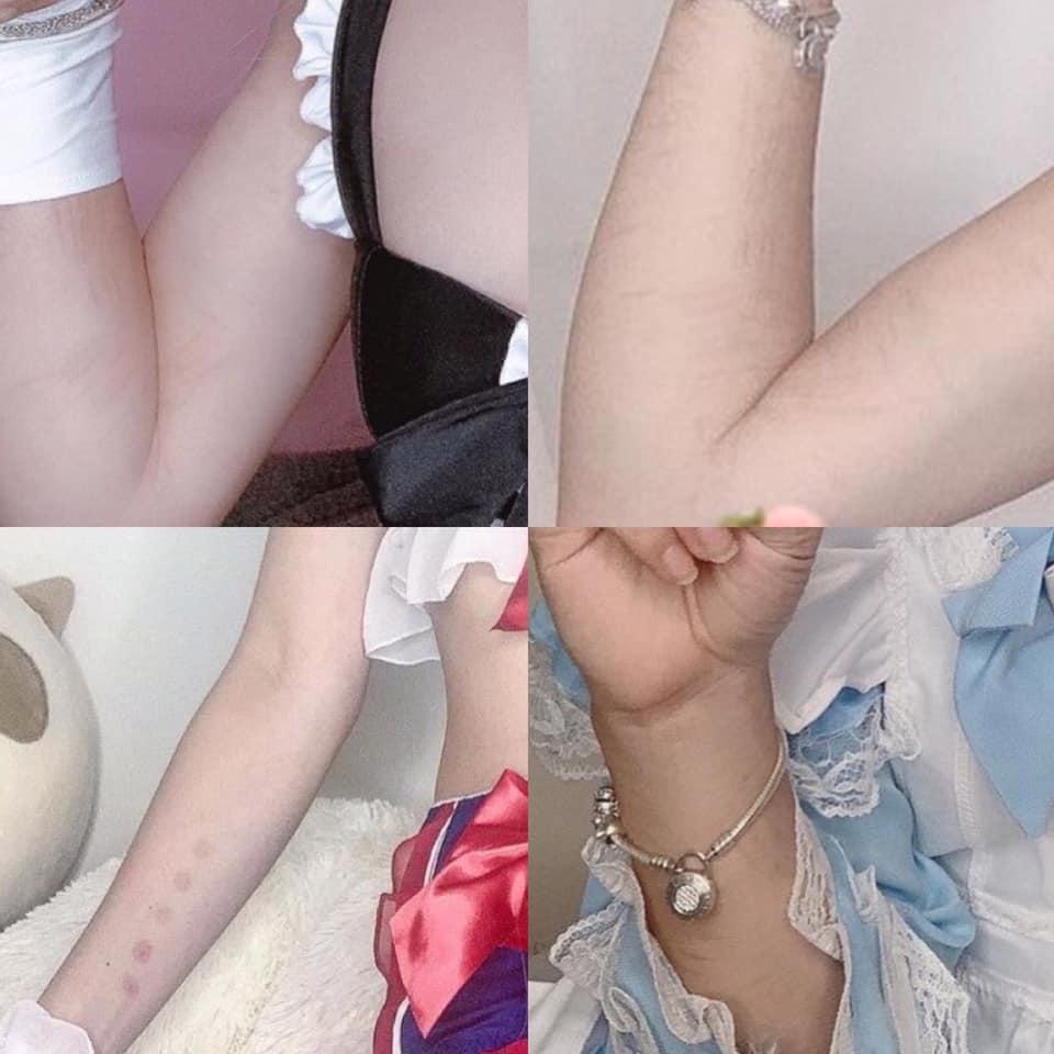 Người theo dõiElodie Alice nhận ra rằng thời gian gần đây, cánh tay của cô gái này xuất hiện các vết thương được cho là bị dao cắt, thuốc châm.