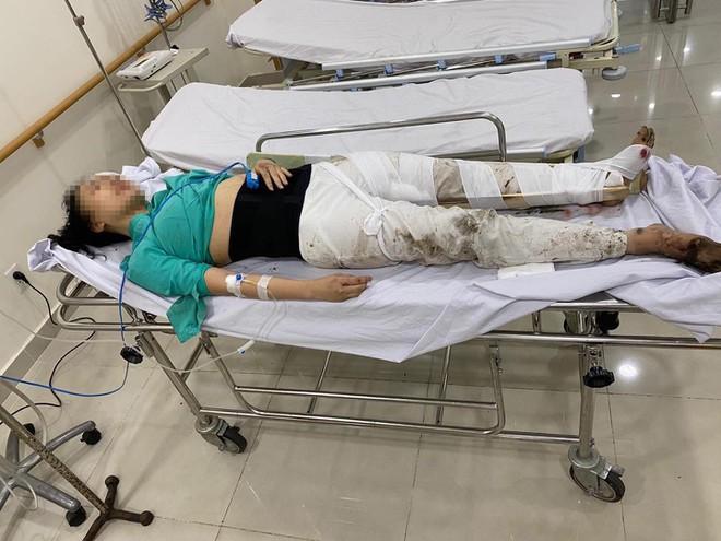 Nữ tiếp viên thời điểm điều trị tại bệnh viện