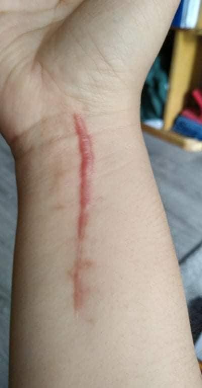 Cậu con trai trổ tài 'tha thu', biến vết sẹo trên tay mẹ thành loạt hình dễ thương muốn xỉu 0