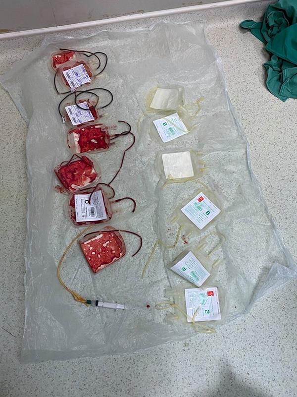 Nhiều bác sĩ và nhân viên y tế trong chính kíp mổ đã sẵn sàng sắn tay áo để cho đi những giọt máu của mình cứu giúp sản phụ.Ảnh bác sĩ Phạm Văn Học.