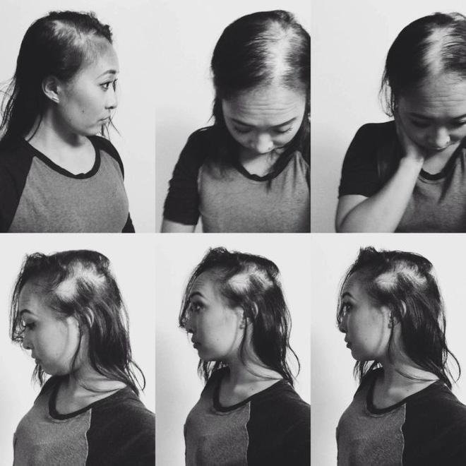 Tình yêu cảm động người phụ nữ gốc Việt: Nhờ rụng sạch tóc trên đầu mà nhận ra được chân tình của người đàn ông bên cạnh 2