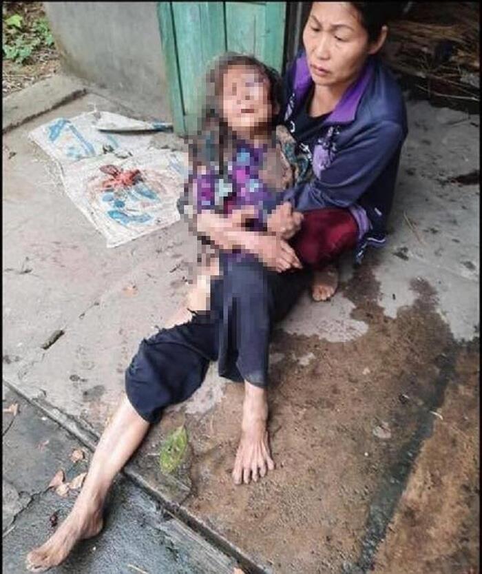Cụ bà Chu Thị Mạo bị đa chấn thương, hiện vẫn đang hoảng loạn.