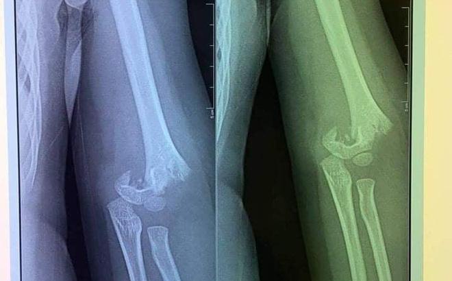 Hình ảnh chụp phim phần trên xương cánh tay của cháu P. bị gãy. Ảnh: Gia đình cung cấp.