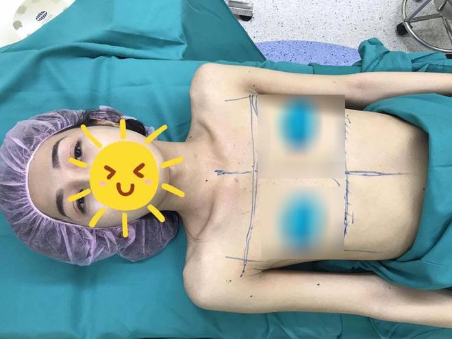 An Kim phải chịu đựng cả chục cuộc phẫu thuật đầy đau đớn, tiềm ẩn không ít rủi ro
