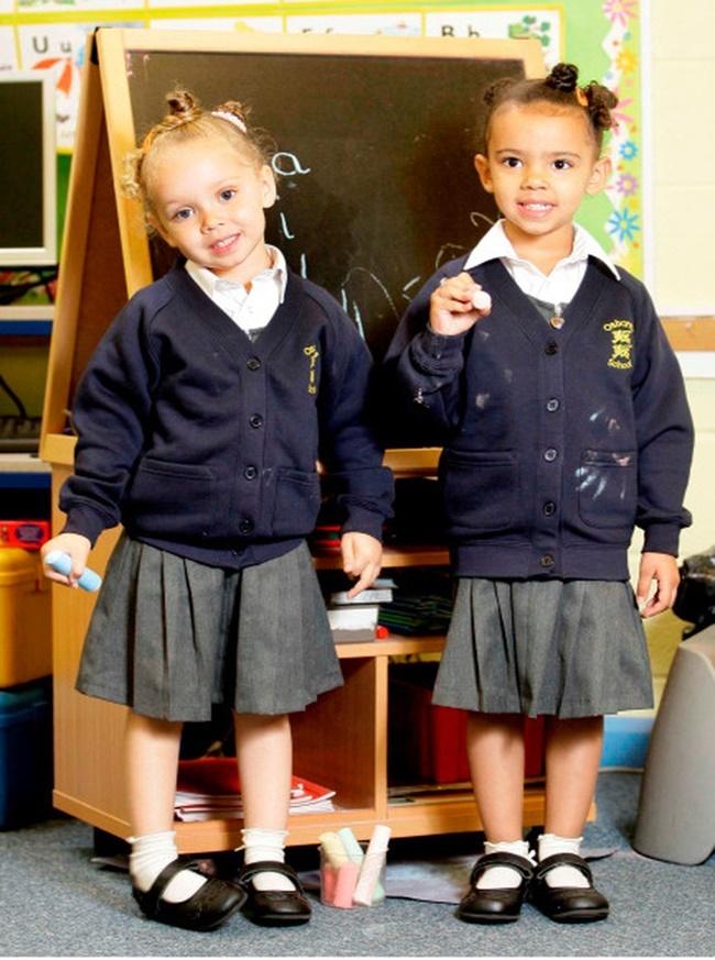 Sự khác biệt của 2 cô bé song sinh luôn gây sự chú ý ở bất kì nơi nào. Mỗi khi đi trên đường, 2 em luôn nhận được những cặp mắt ngạc nhiên của mọi người.Không chỉ vậy, ở trường học cũ - trường Osborne Junior and Infant School ở Erdington, Birmingham, Anh - các giáo viên cũng đã rất khó khăn mới có thể tin được 2 cô bé là cặp song sinh.