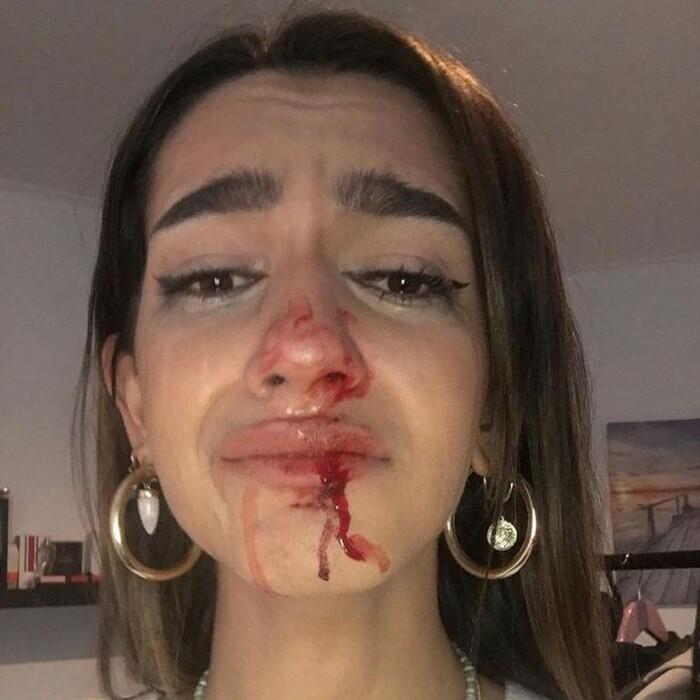Cô gái chuyển giới 19 tuổi bị hành hung và gọi là đồ quái vật.