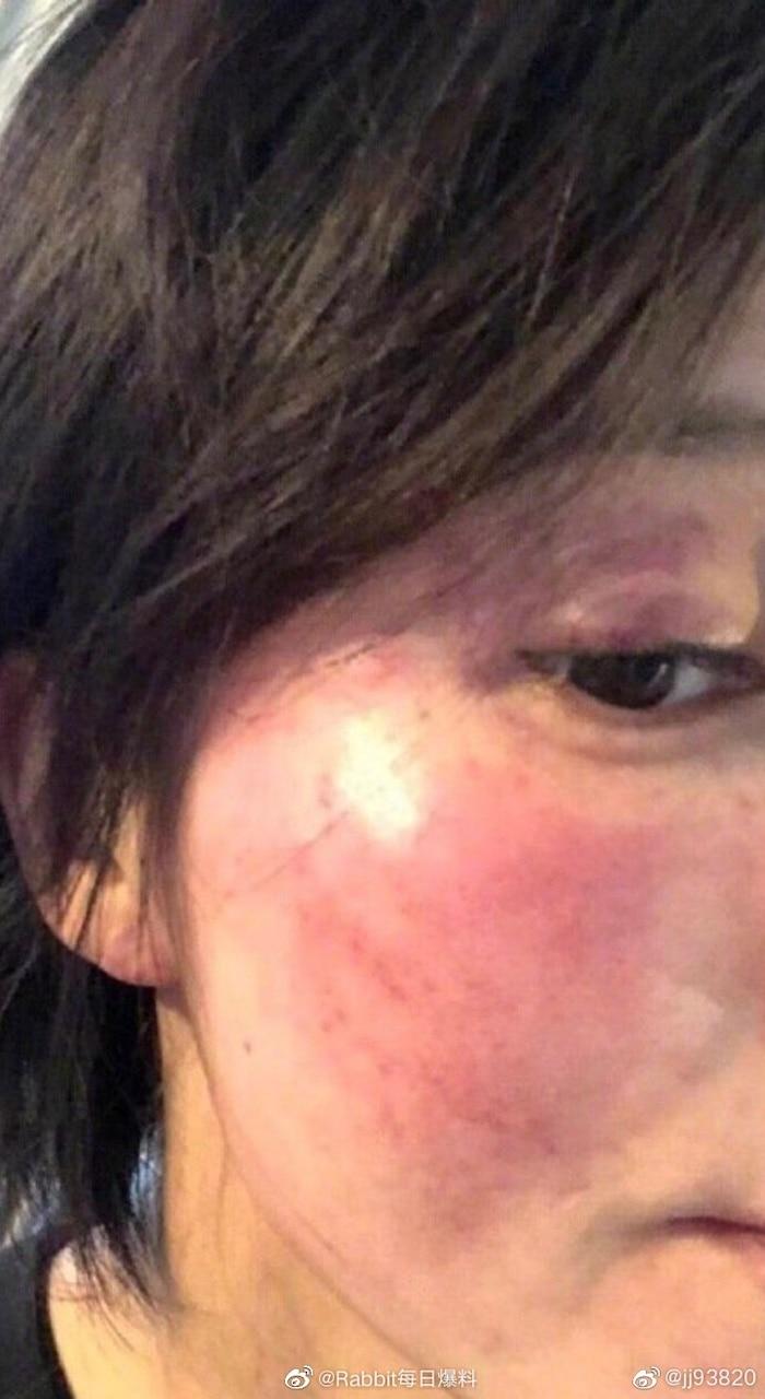 Gương mặt bầm tím vì bị Hoàng Cảnh Du đánh của Vương Vũ Hinh.