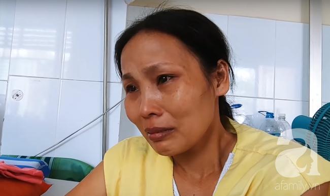 Vợ khóc nức nở khi chồng bỏng điện nặng đi mổ, được giúp hơn 100 triệu đồng nhưng chưa thể xuất viện 0