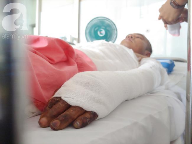 Anh Tuấn nhập viện vì bỏng nặng khi đi làm hồ nuôi cả nhà.