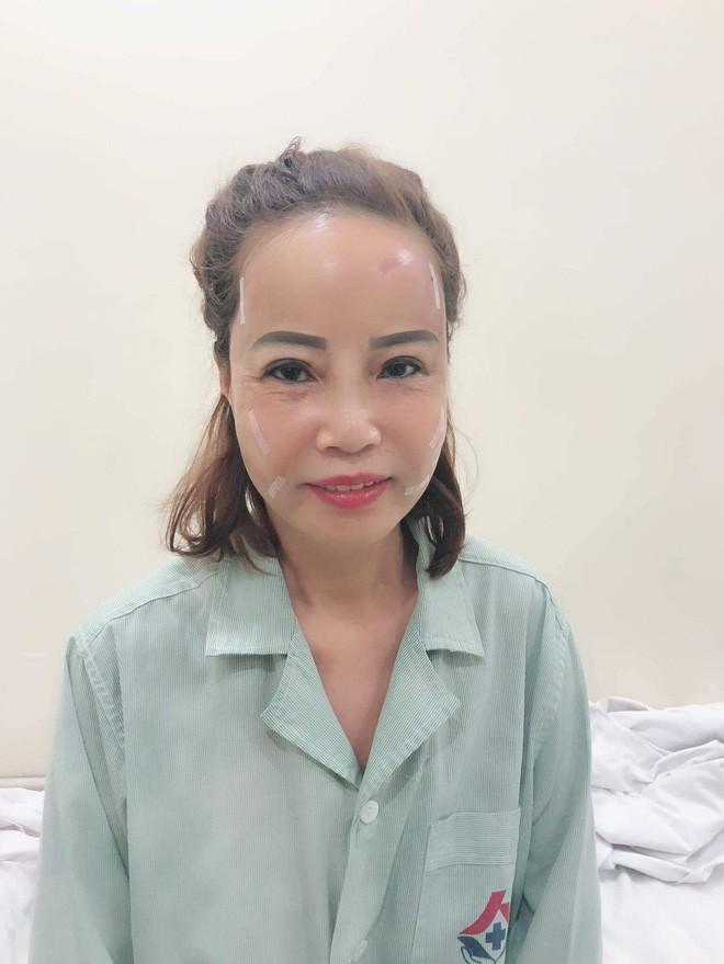 Người phụ nữ này cũng thực hiện phẫu thuật thẩm mỹ trẻ hóa làn da và bọc răng sứ.