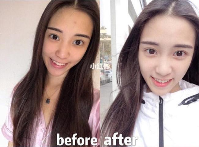 Làn da của cô nàng này đã trắng sáng hơn hẳn chỉ sau 1 thời gian ngắn, không chỉ da mặt...