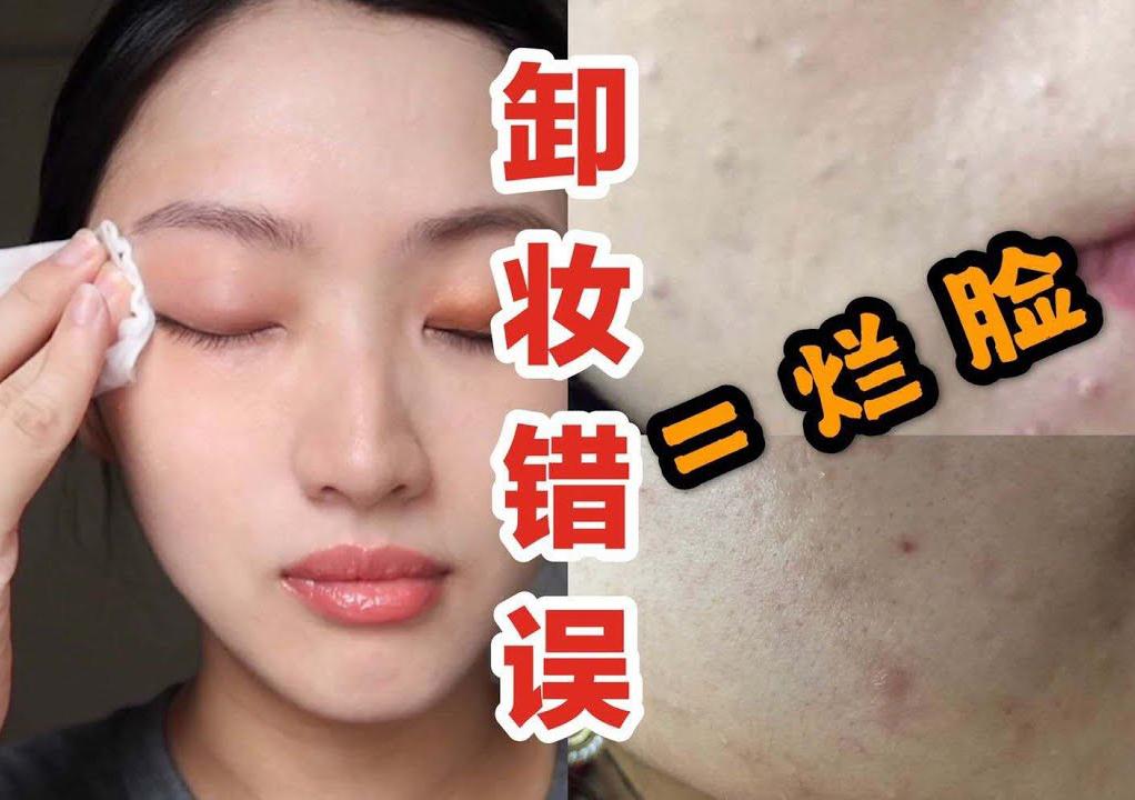 Beauty blogger người Nhật cảnh báo: Chị em đang 'huỷ hoại' chính làn da của mình ngay từ bước tẩy trang 2