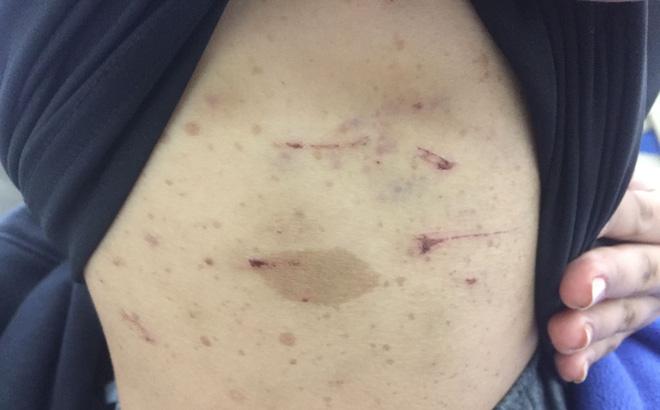 Vụ thiếu nữ 17 tuổi bị tra tấn dã man: Bắt khẩn cấp ông trùm 'điều đào' 0