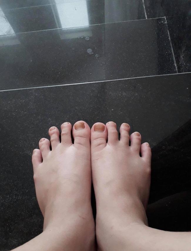 Hình ảnh đôi bàn chân do Đỗ Thị Hà chia sẻ lên trang cá nhân