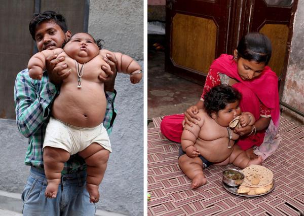 Chahat thường xuyên đòi ăn, rất khác so với những đứa trẻ thông thường.