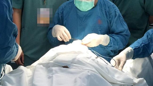 TP.HCM: Hút mỡ đùi tại thẩm mỹ viện, người đàn ông 31 tuổi bị biến chứng phải đi cấp cứu