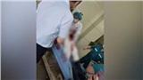 Bệnh nhân đâm bác sĩ nguy kịch vì không chữa được bệnh liệt dương