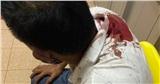 Mang lồng chim đi taxi, khách bị tài xế rút dao đâm nhập viện