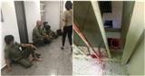 TP.HCM: Kinh hoàng phát hiện thi thể người phụ nữ lìa đầu tại khu chung cư, nghi rơi từ tầng cao xuống
