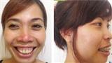 Giải quyết hô móm: nên niềng răng hay phẫu thuật hàm?