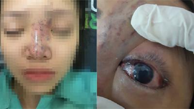 TP.HCM: Nữ sinh viên 19 tuổi biến dạng mặt, suýt mù mắt vì tiêm nâng mũi tại 'thẩm mỹ viện chung cư'
