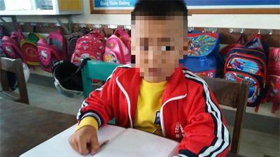 Cô giáo tát học sinh lớp 1 nghi dẫn đến chấn động não ở Quảng Bình