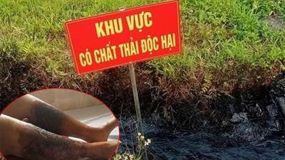 Xác định đối tượng đổ trộm chất thải độc ra mương nước khiến một phụ nữ bị bỏng nặng